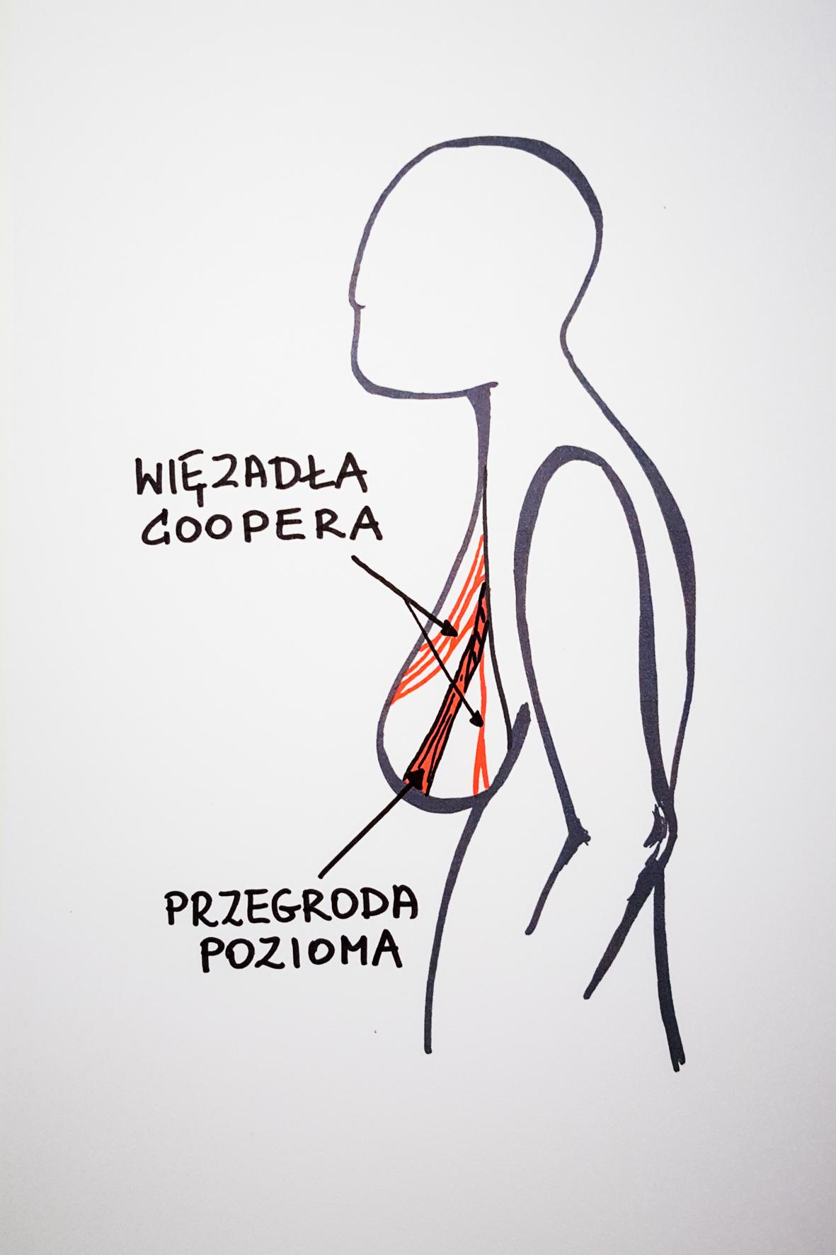 Zmiany aparatu więzadłowego w piersiach pod wpływem wieku, przyrostu wagi, niewłaściwej bielizny. Rycina przedstawia przygarbioną sylwetkę z piersiami z zaznaczonymi więzadłami Coopera oraz przegrodą poziomą.
