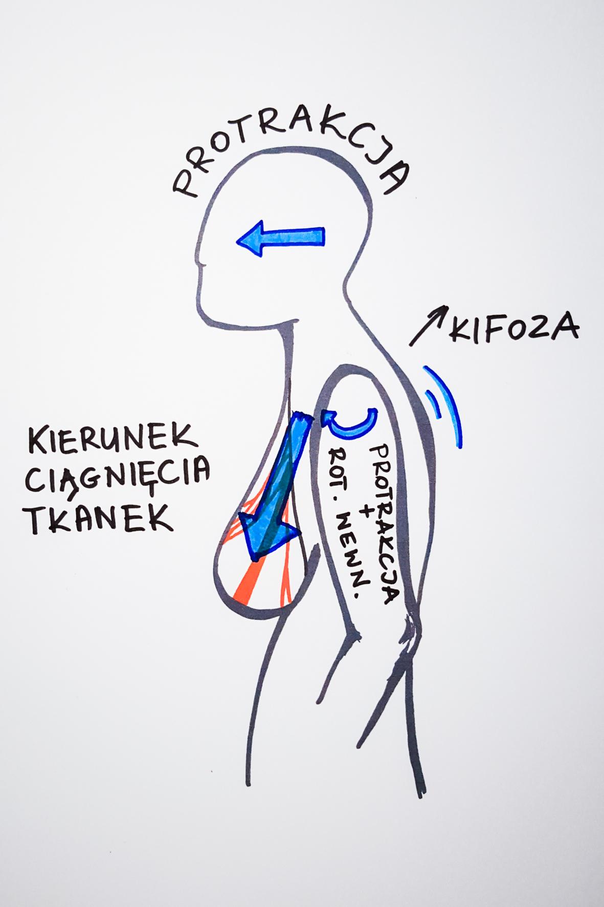 Zmiany mogące powstać w posturze ciała na skutek pociągania tkanek klatki piersiowej. Rycina przedstawia przygarbioną sylwetkę z piersiami, z zaznaczonymi kierunkami pociągania: piersi w dół, głowy w przód (protrakcja), ramienia w przód (protrakcja i rotacja wewnętrzna), plecy - zgarbienie (kifoza).